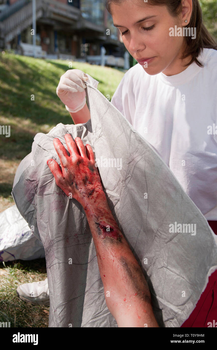 Paramedic treating a victim with third degree burns. Simulated exercise, professional SFX make-up. - Stock Image