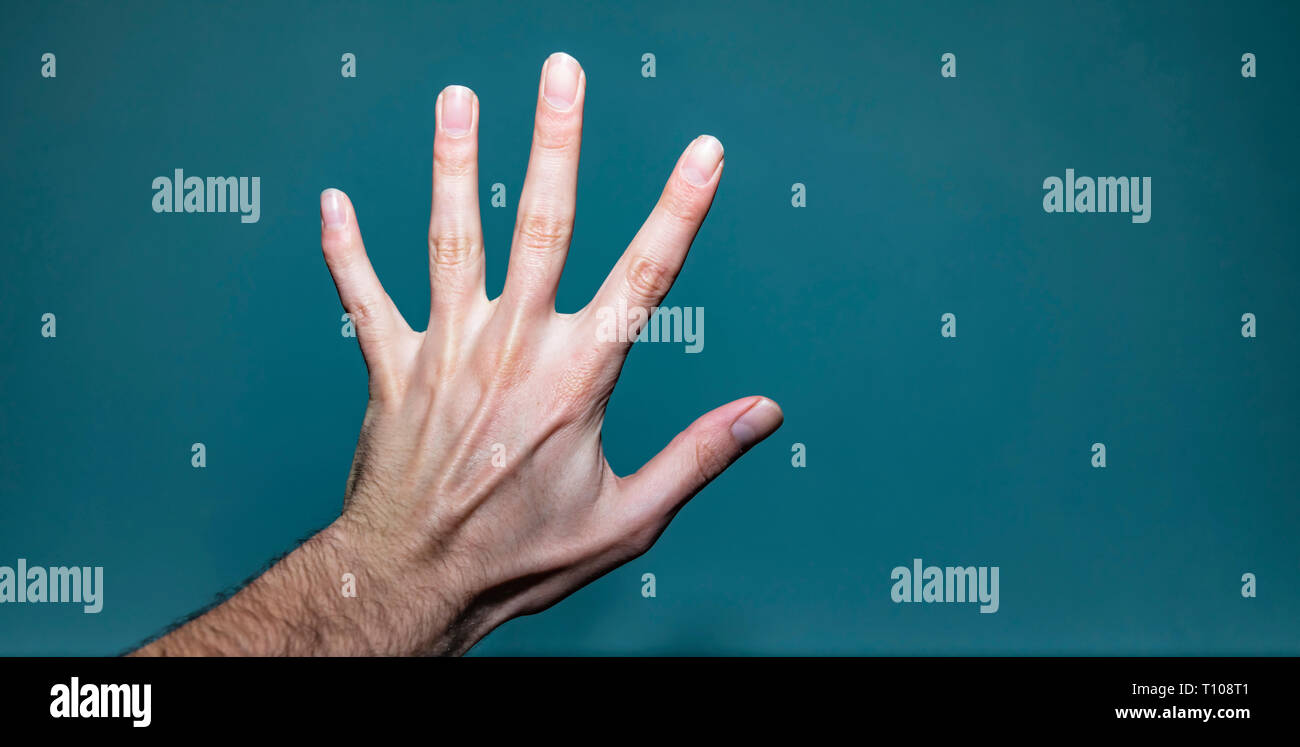 Shot of a white caucasian man's left hand with a broken pinky finger that hasn't healed properly, and a ganglion cyst lump lodged between the dors - Stock Image