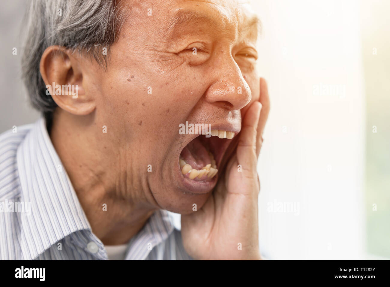 Asian elder serious pain tooth dental problem teeth caries decayed inside jaw bone. - Stock Image