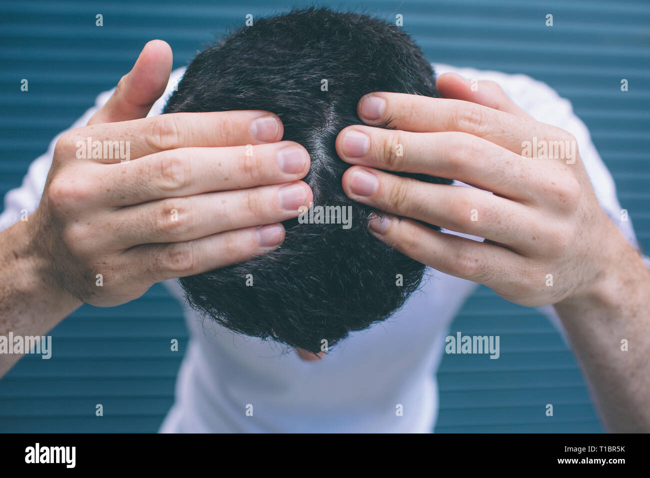A picture of brunette showing his hair on head. He is touching it with hands. Guy has problems with hair. Isolated on striped and blue background. Stock Photo
