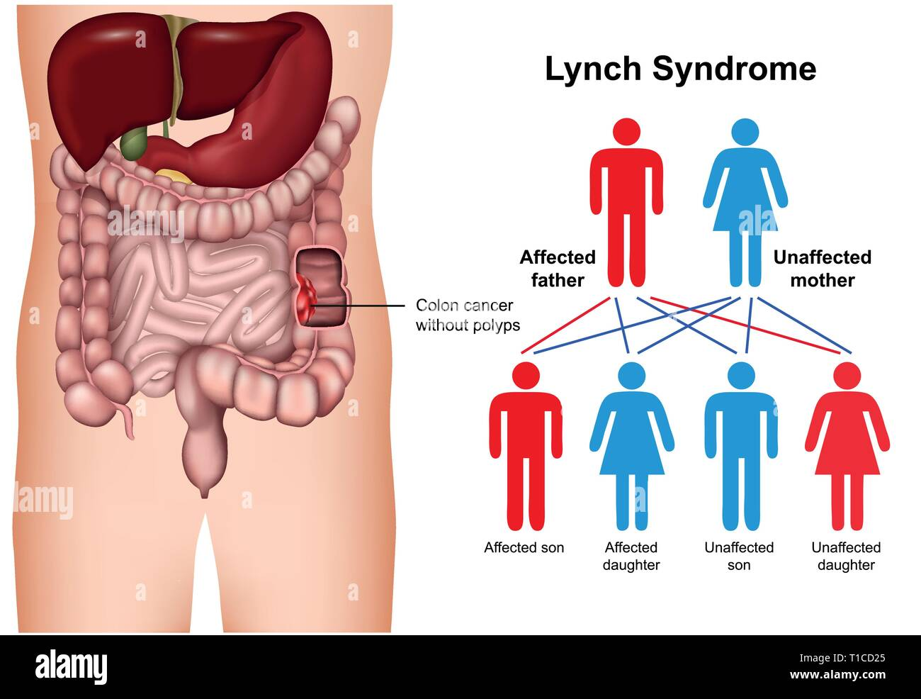 Lynch syndrome disease 3d medical vector illustration on white background Stock Vector