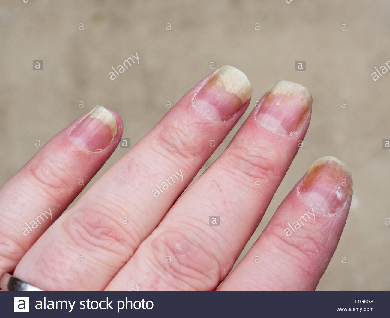 Mans hand showing nails that are badly infected with nail fungus, an unplesant affliction that affects millions of people worldwide - Stock Image