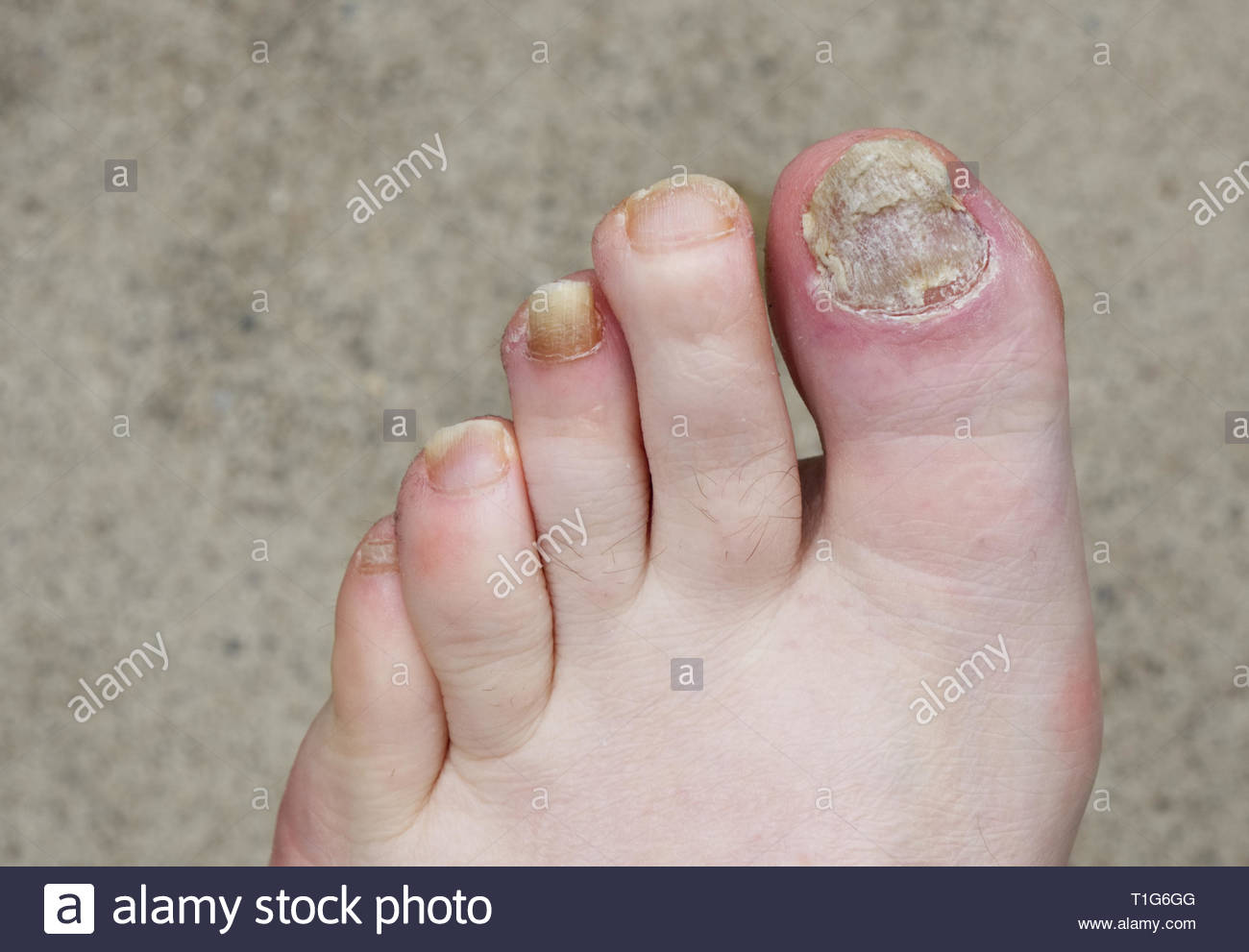 Nails badly infected with nail fungus on a white male foot Stock ...