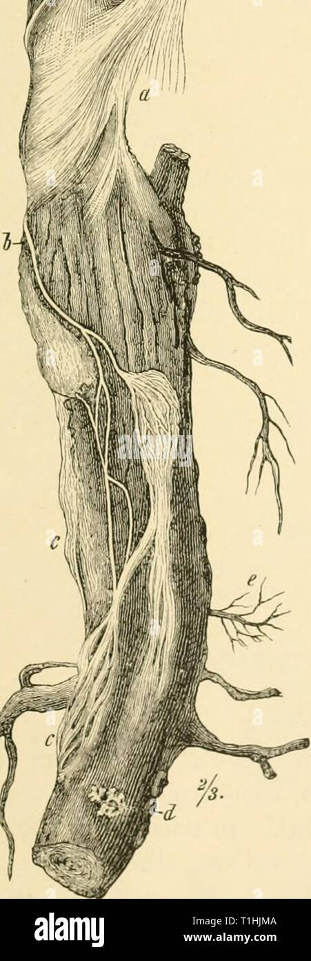 Diseases of plants induced by Diseases of plants induced by cryptogamic parasites; introduction to the study of pathogenic Fungi, slime-Fungi, bacteria, & Algae  diseasesofplants00tube Year: 1897  -r Stock Photo