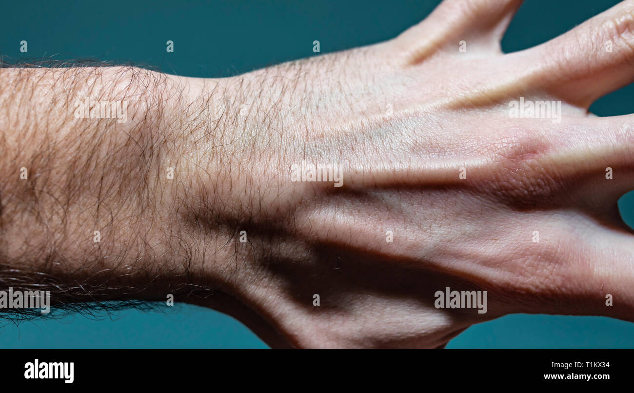 Cyst Stock Photos & Cyst Stock Images - Alamy
