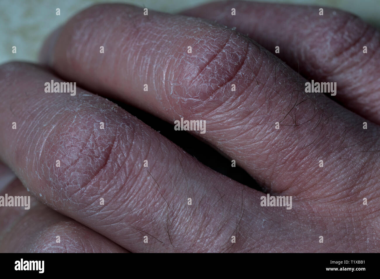 Fingers Close Up With Dry Skin Cracked White Dry Skin Damaged By Eczema Fingers Close Up Human Hands With Dry Skin Stock Photo Alamy