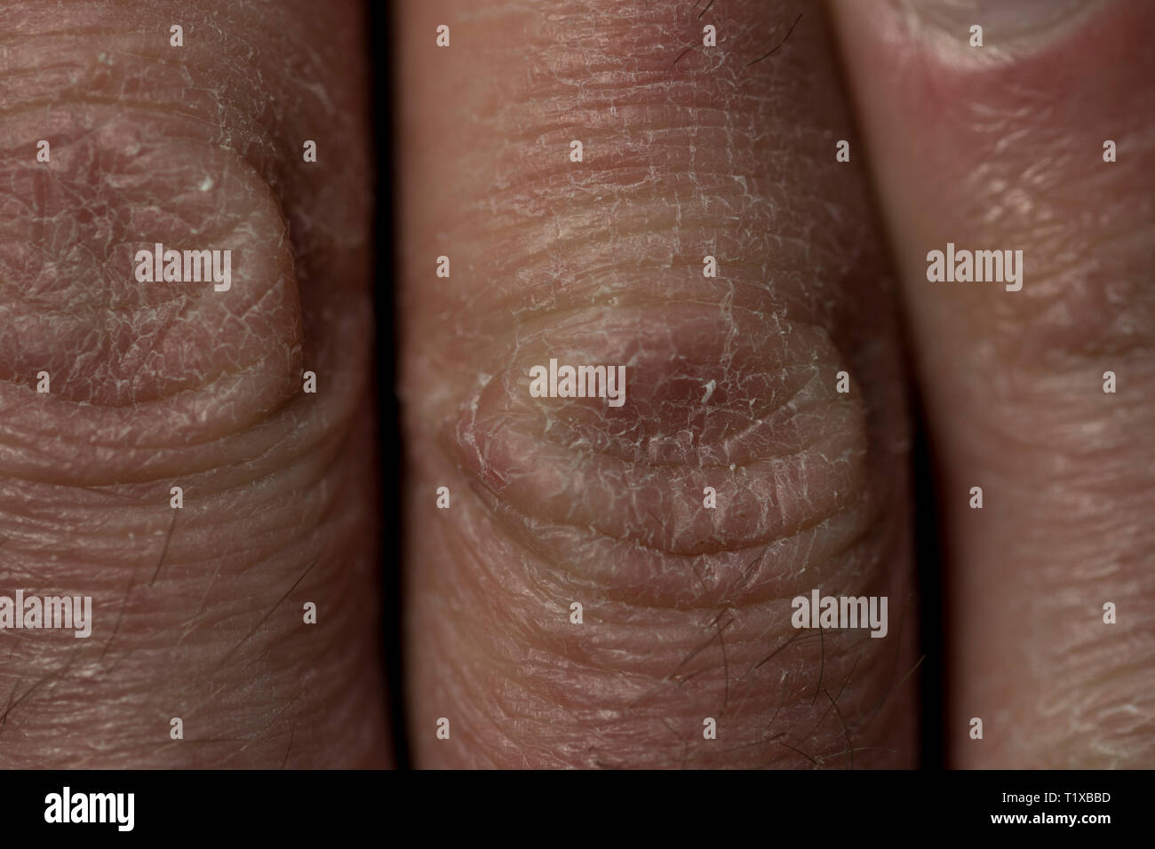 Dry Skin Close Up Knuckles With Scaling Dry Skin Damage Eczema Dry Skin Up Close On Human Hand Stock Photo Alamy