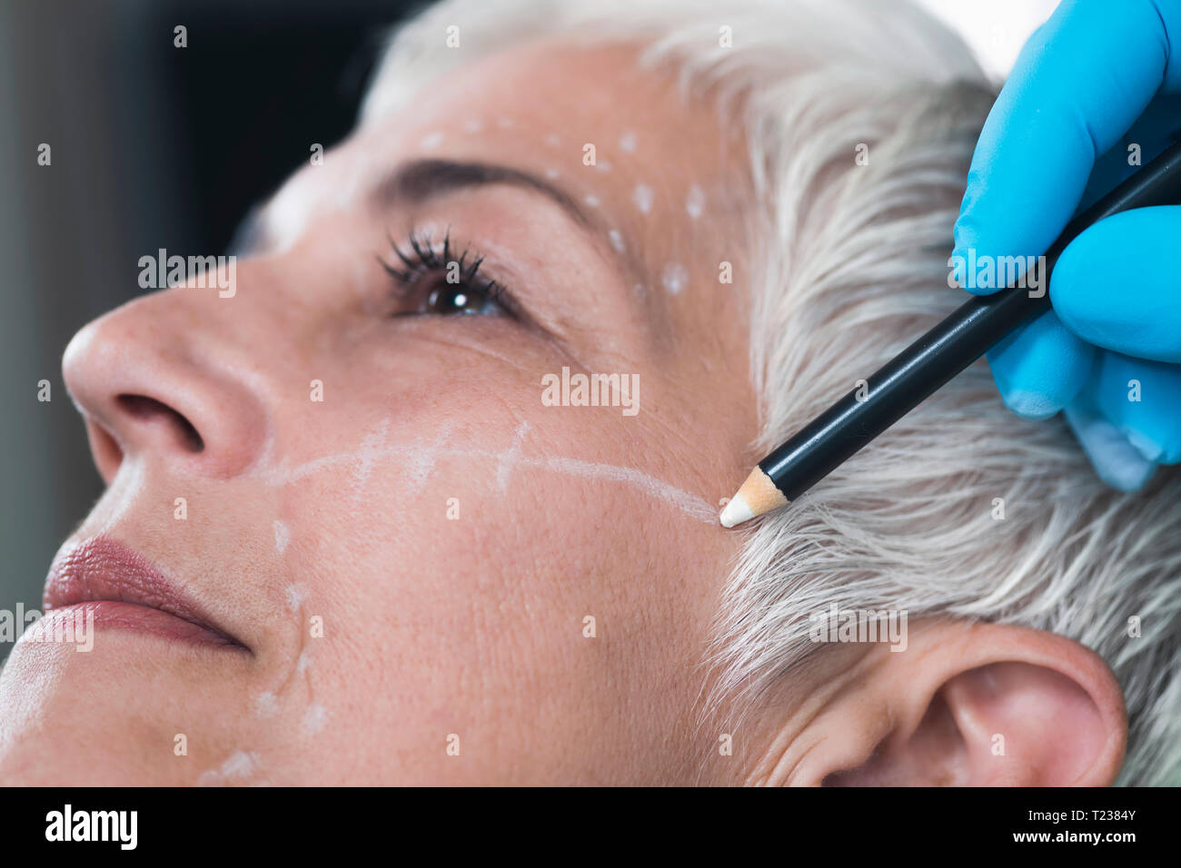 Doctor's hand in blue surgical glove marking senior women's face for cosmetic injections. - Stock Image