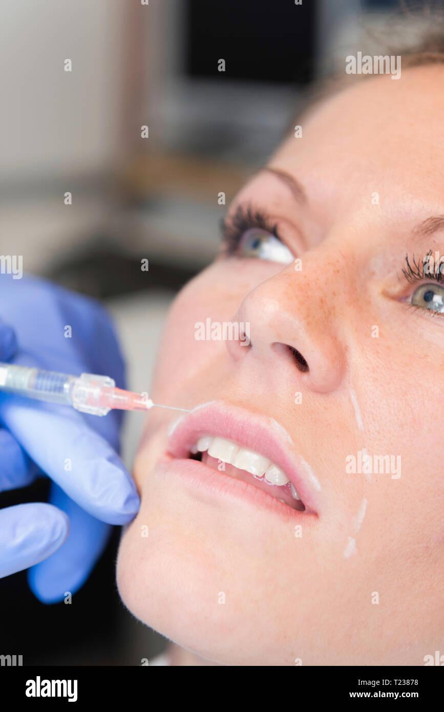 Hyaluronan injection anti aging treatment. - Stock Image