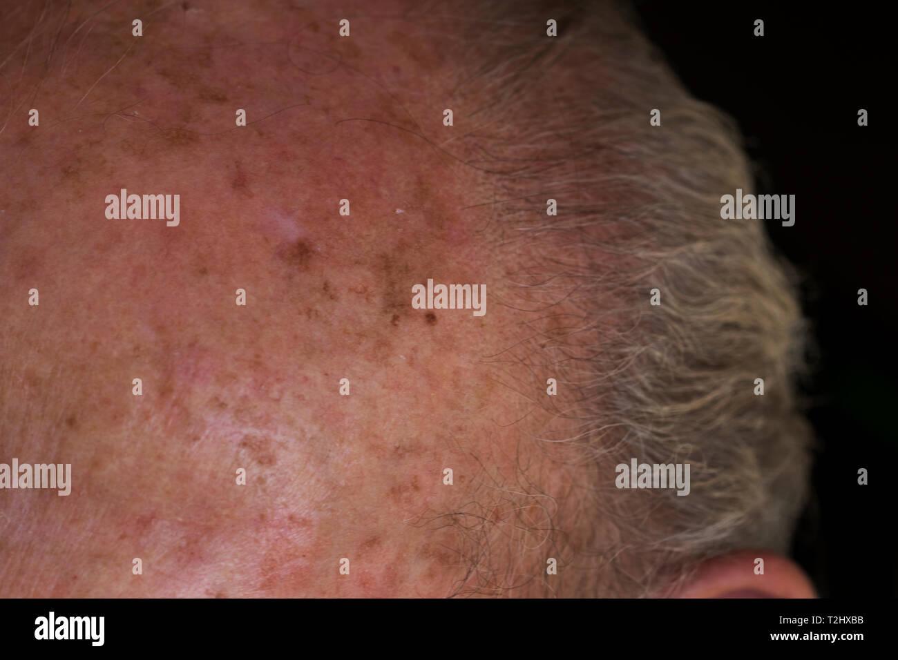 Carcinoma melanoma skin damage on elderly mans forehead from sun exposure. Close up of precancerous skin. Stock Photo