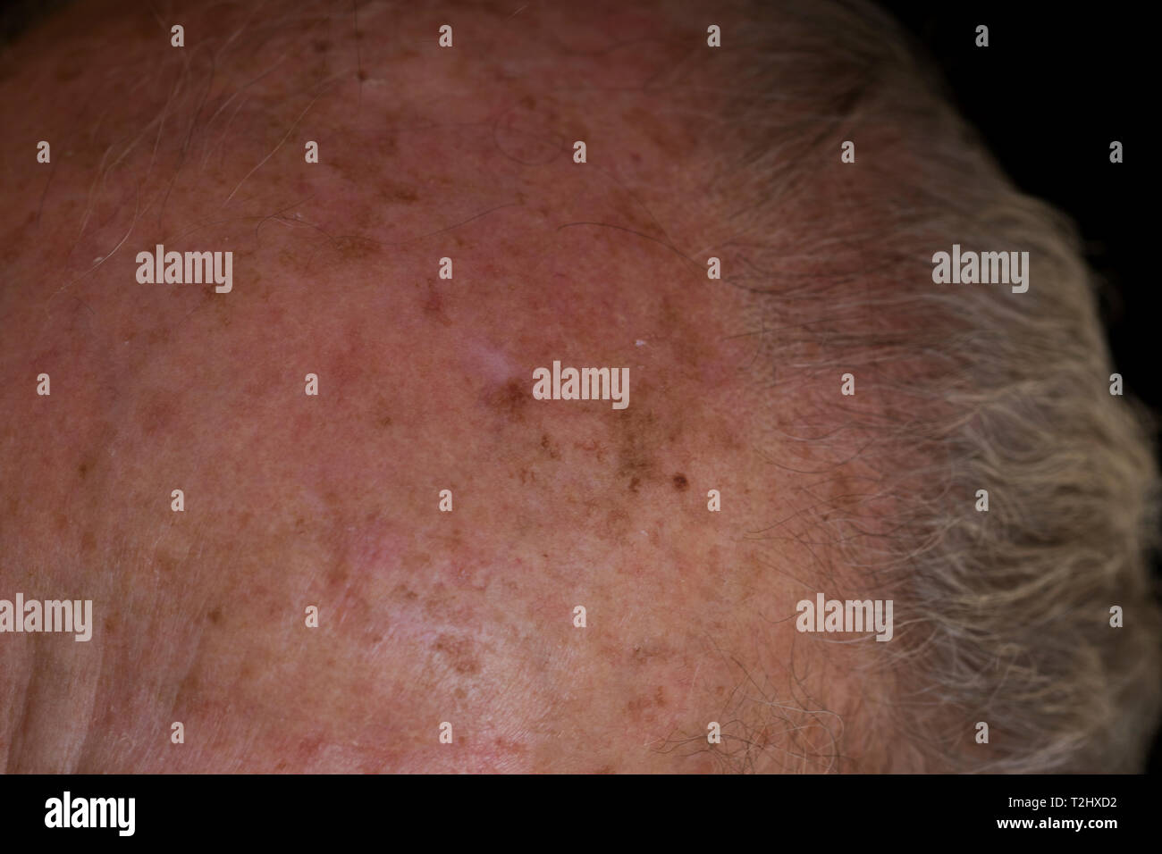 Skin Cancer Melanin Cells High Resolution Stock Photography And Images Alamy
