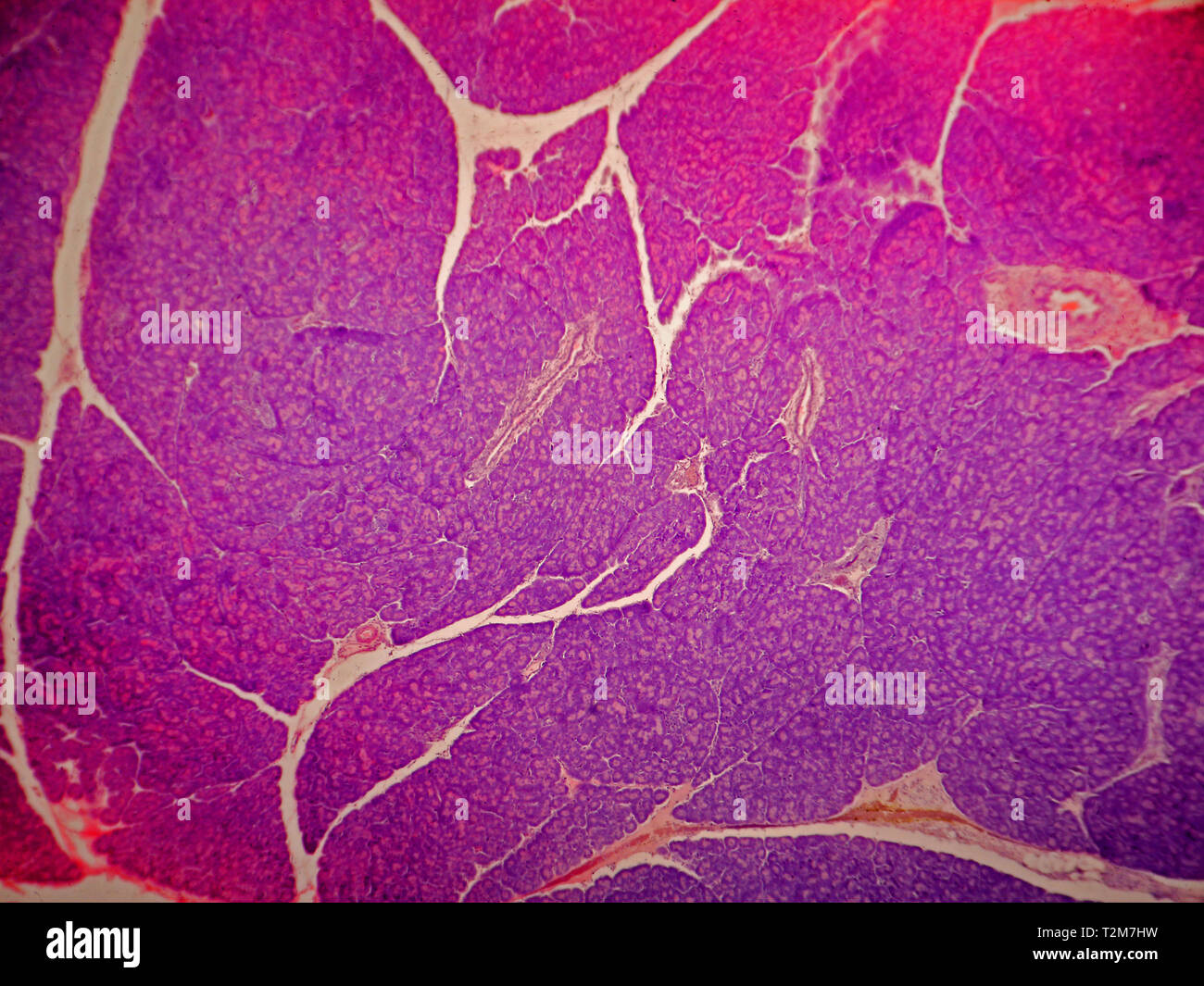 Pancreas tissue. - Stock Image