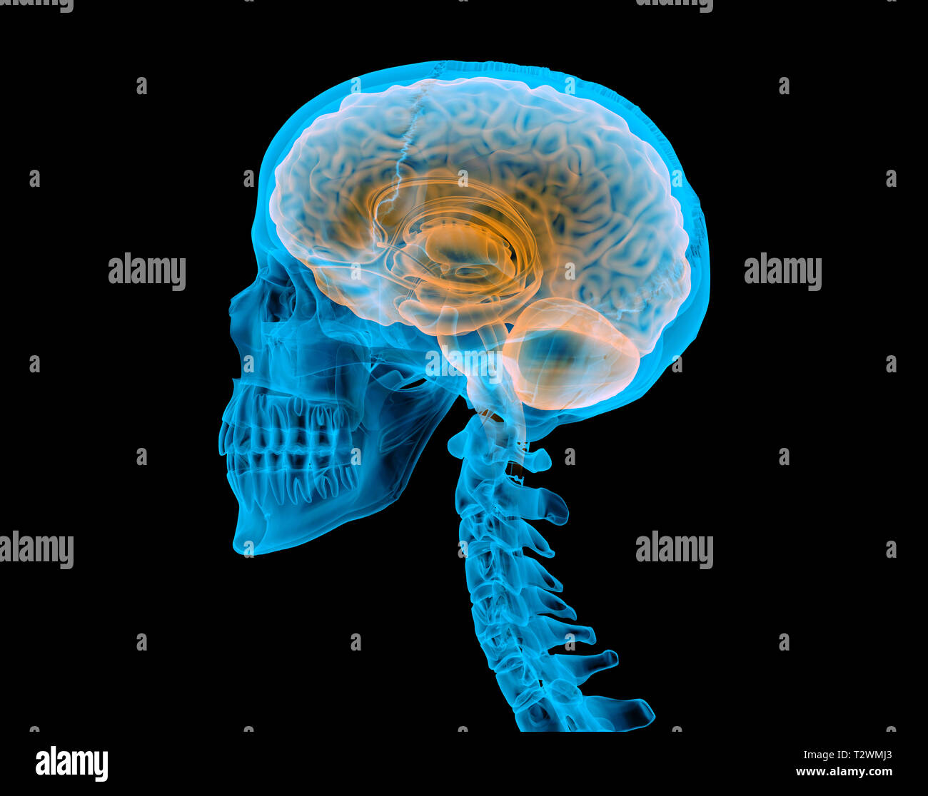 Human skull with brain. X-ray effect. Side view on black background. - Stock Image