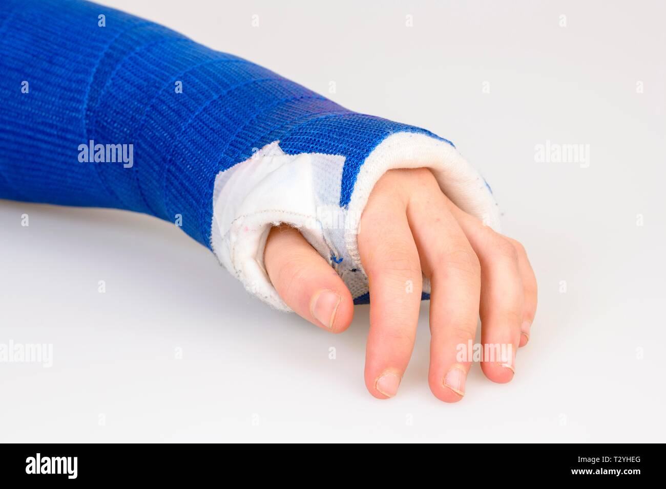 Symbol picture, wrist with plaster cast, Germany Stock Photo