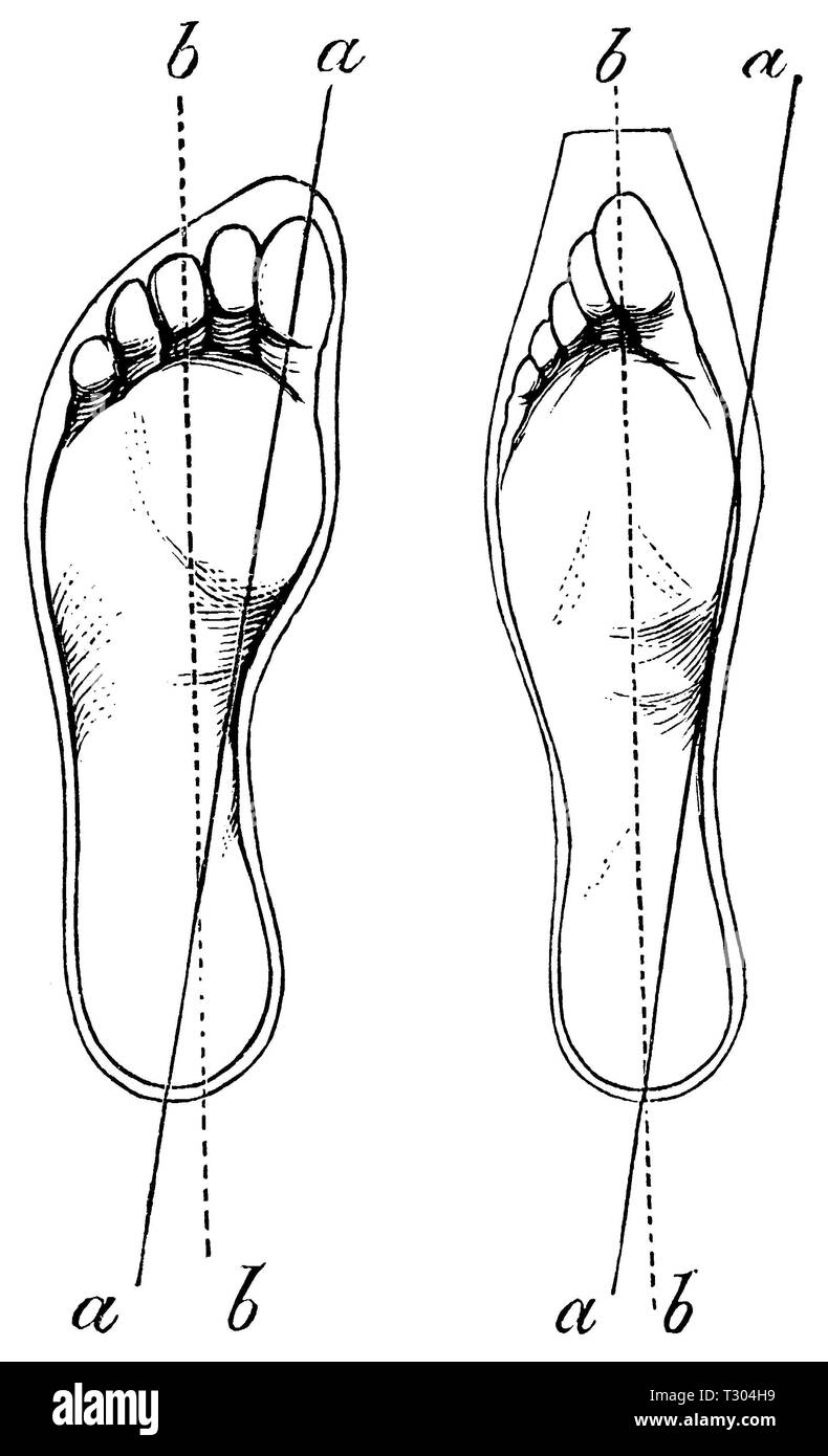 Human: foot - normal foot (left), deformed foot (right), anonym - Stock Image