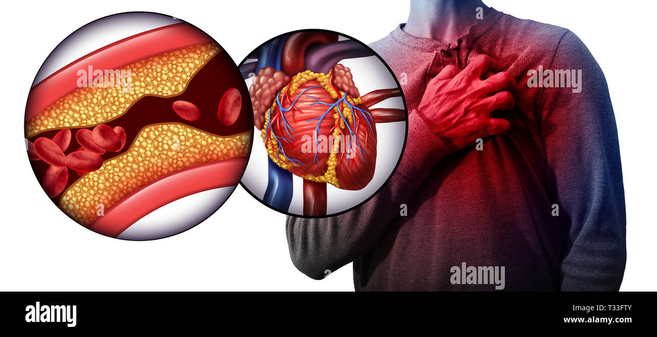 Myocardial infarction as a person suffering from a heart
