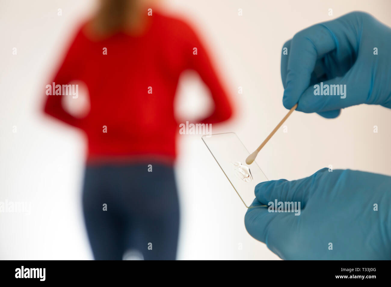 Cervical cancer, cervical carcinoma, smear after an examination of the cervical canal, the smear is examined, microscopically, for cell changes, PAP t - Stock Image
