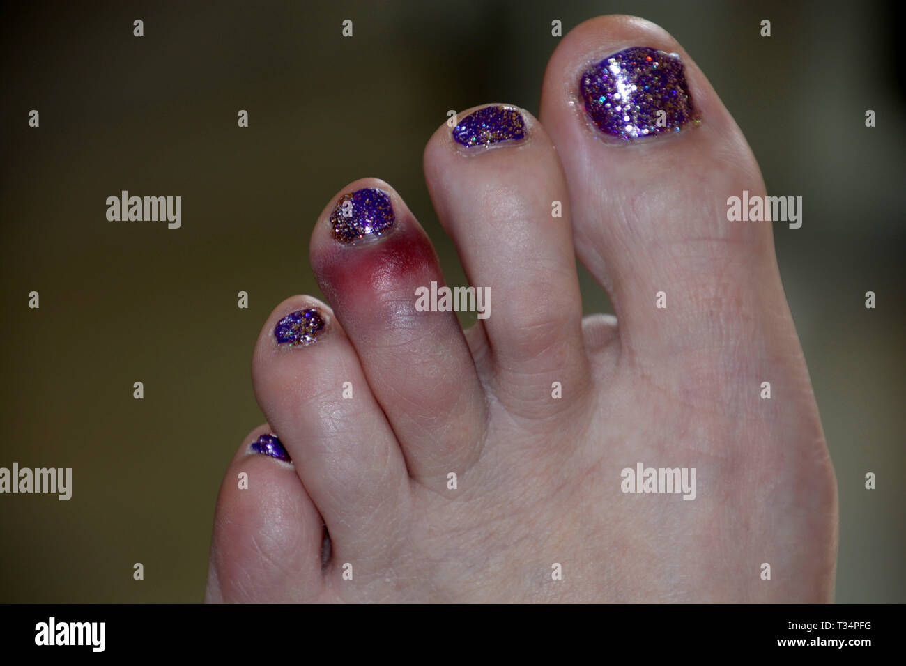 dislocated toe bruising after sport mistake, black and blue bruise on the left foot of the middle toe of a female after a painful accident Stock Photo