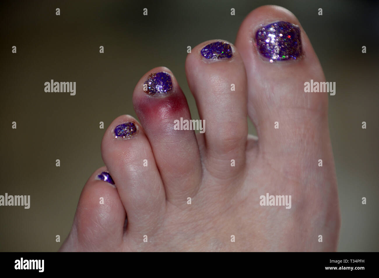 close-up view of dislocated toe bruising after sport mistake, black and blue bruise on the left foot of the middle toe of a female after a painful acc - Stock Image