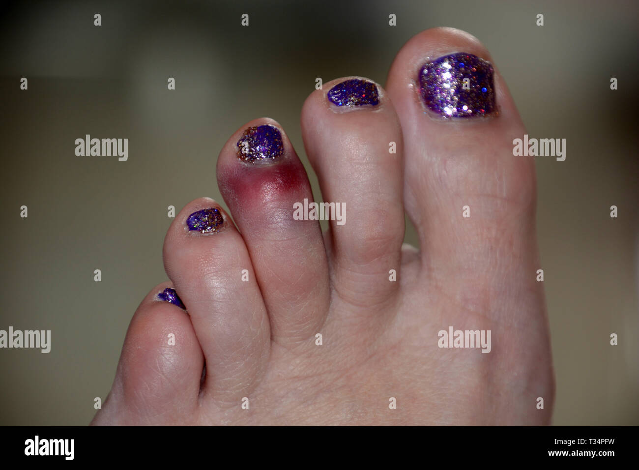 black and blue bruise on the left foot of the middle toe of a female after a painful accident, unsightly bruise of glitter nail polish toe after sport Stock Photo