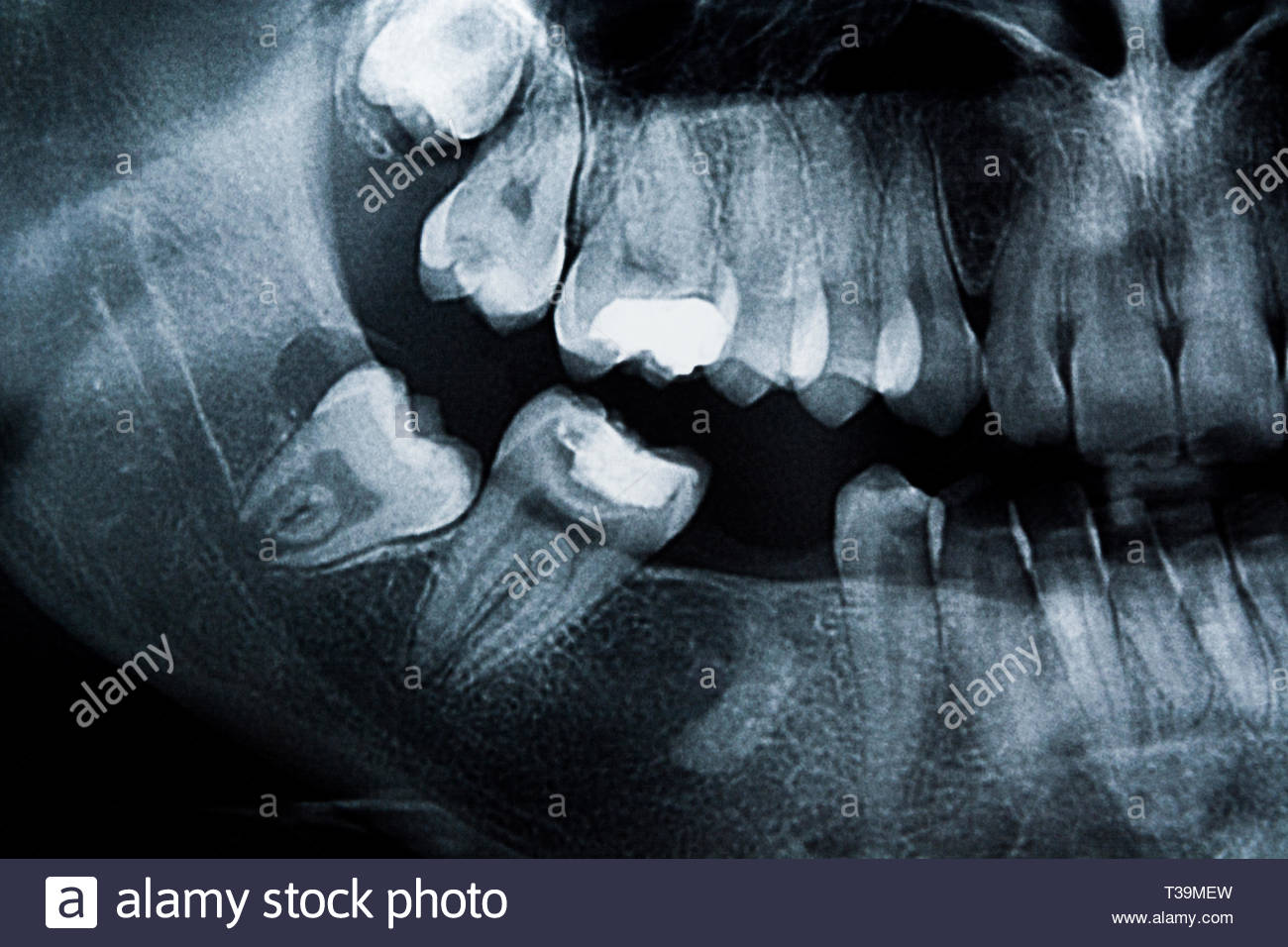 Dental x-ray of a young female molars with tooth missing, fillings and medical problems. Root in bone. - Stock Image