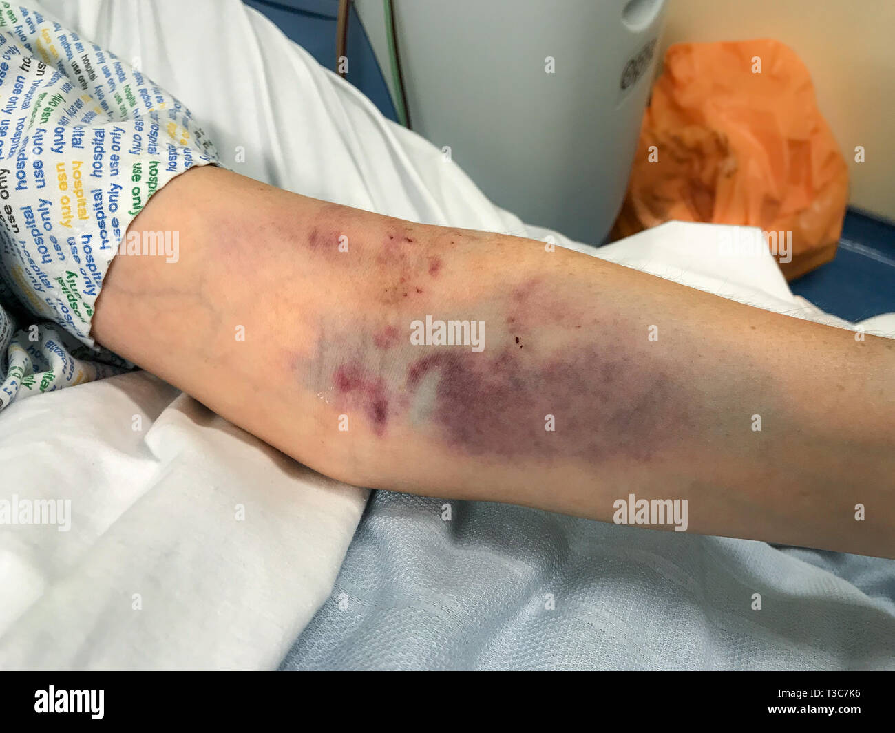 A close up of a woman's arm badly bruised from several attempts at drawing blood, the edge of the hospital gown can just be seen. - Stock Image