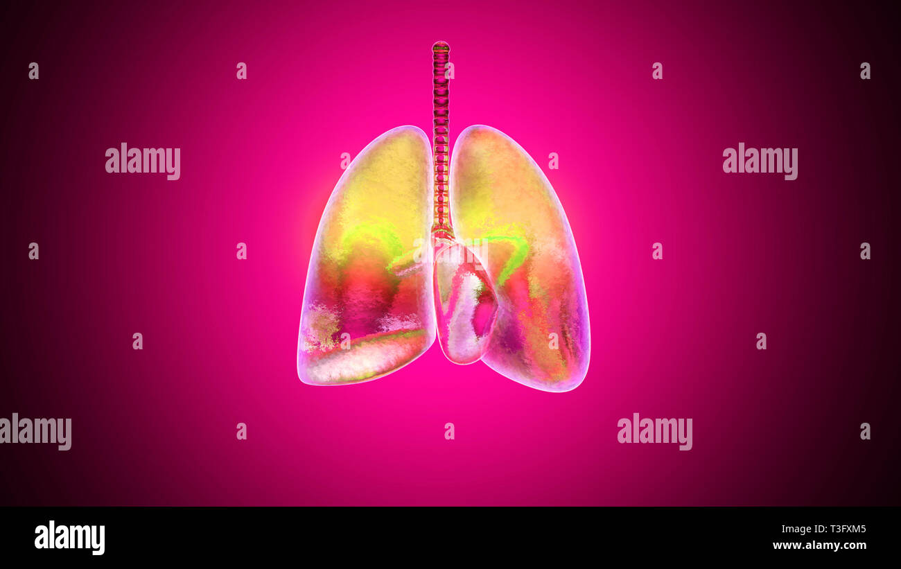 3D illustration of human lungs inflamed and infected by a disease like Pneumonia or Tuberculosis. - Stock Image