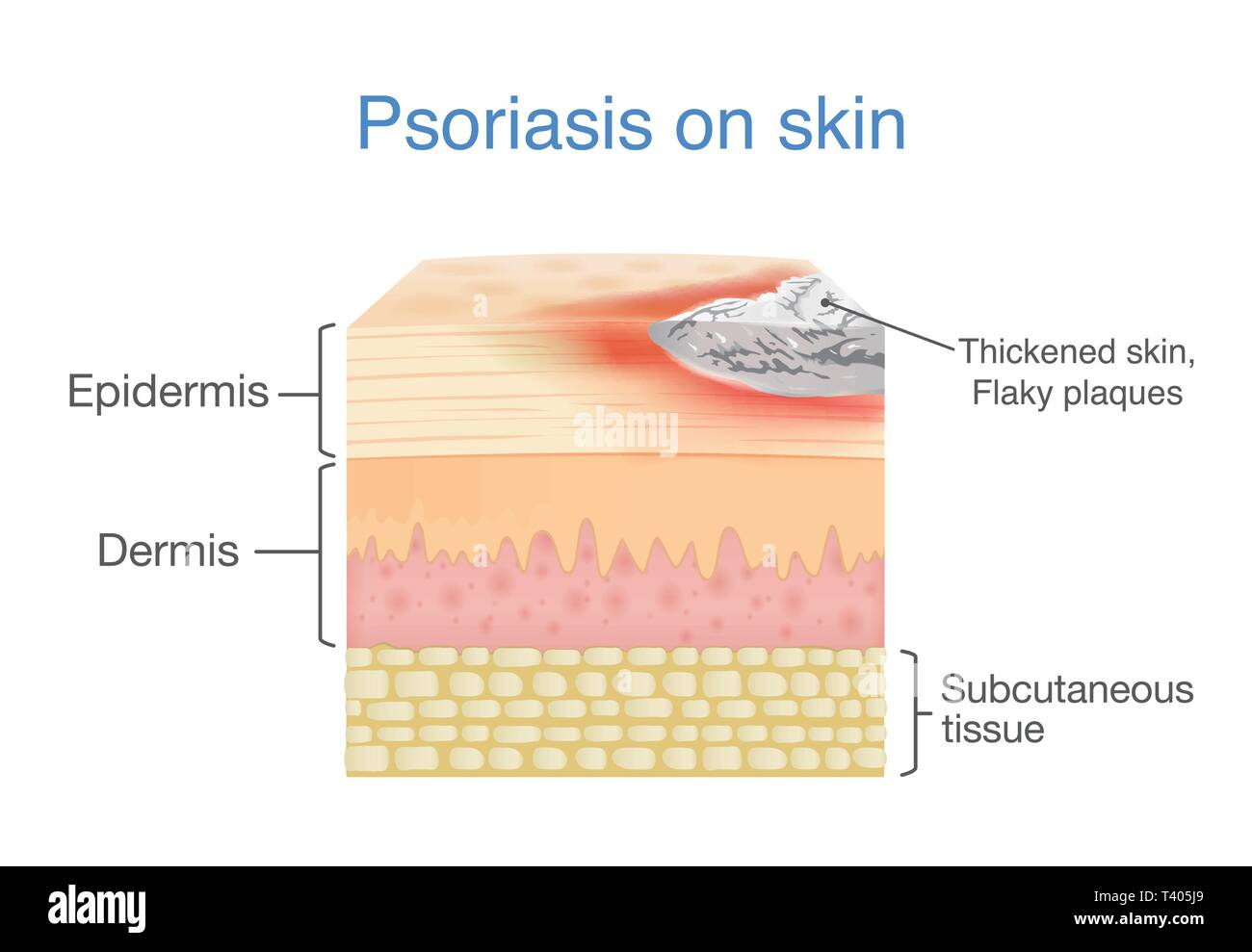 Illustration of human skin layer when plaque psoriasis signs and symptoms appear. - Stock Image