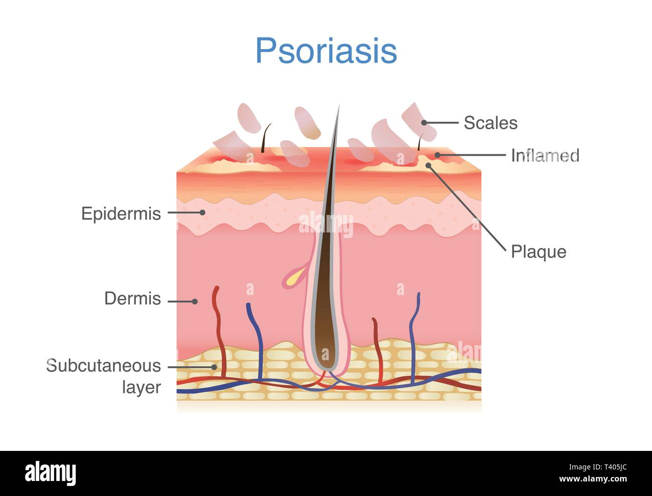 Human skin layer when plaque psoriasis signs and symptoms appear. - Stock Image