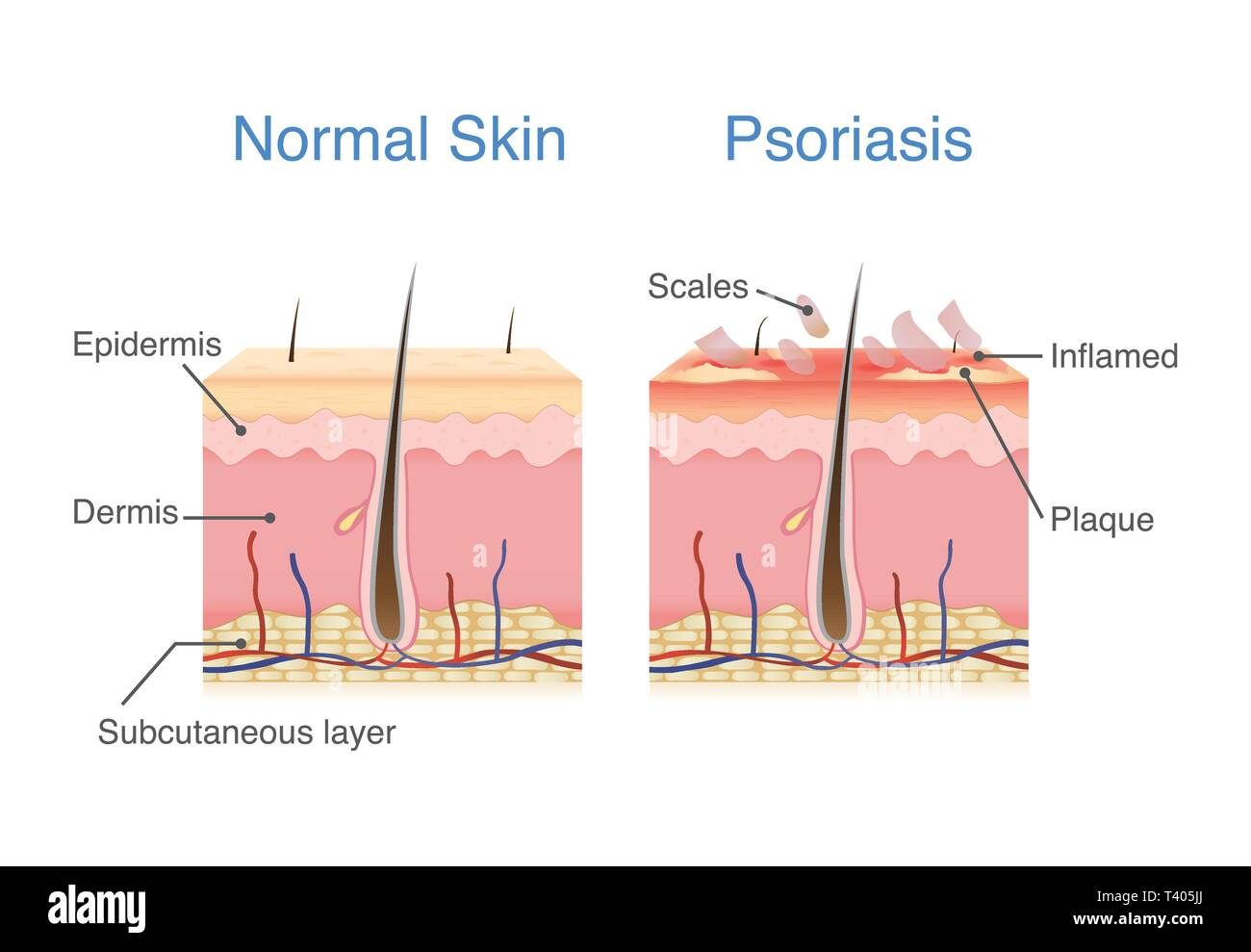 Normal skin layer and skin when plaque psoriasis signs and symptoms appear. - Stock Image