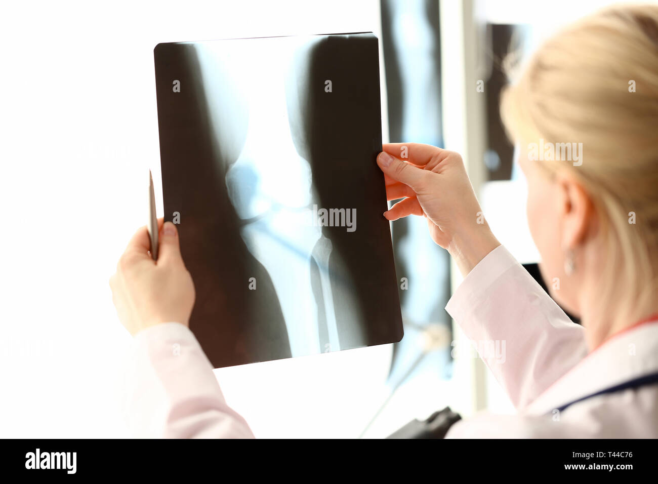 Female radiolog holding in hands x-ray - Stock Image