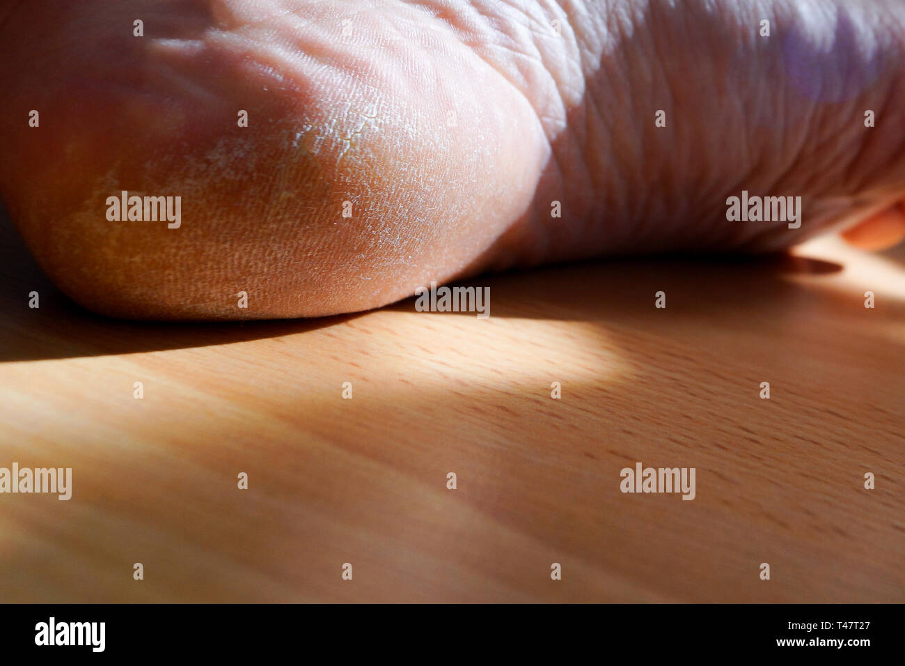 Closeup image of a heel on the foot with a white callus. Image for medical purposes. - Stock Image