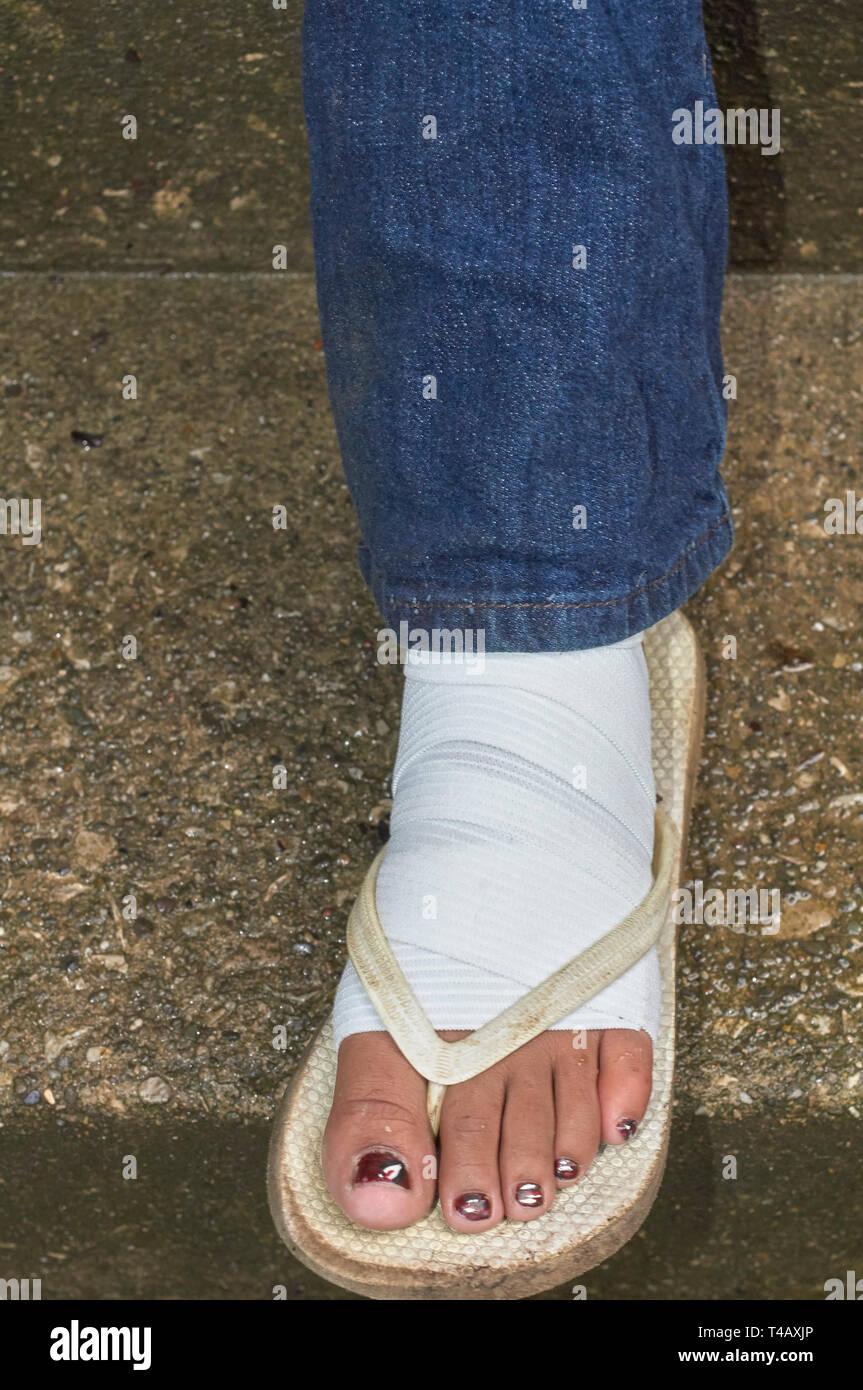 camper with bandaged left foot in sandal - Stock Image