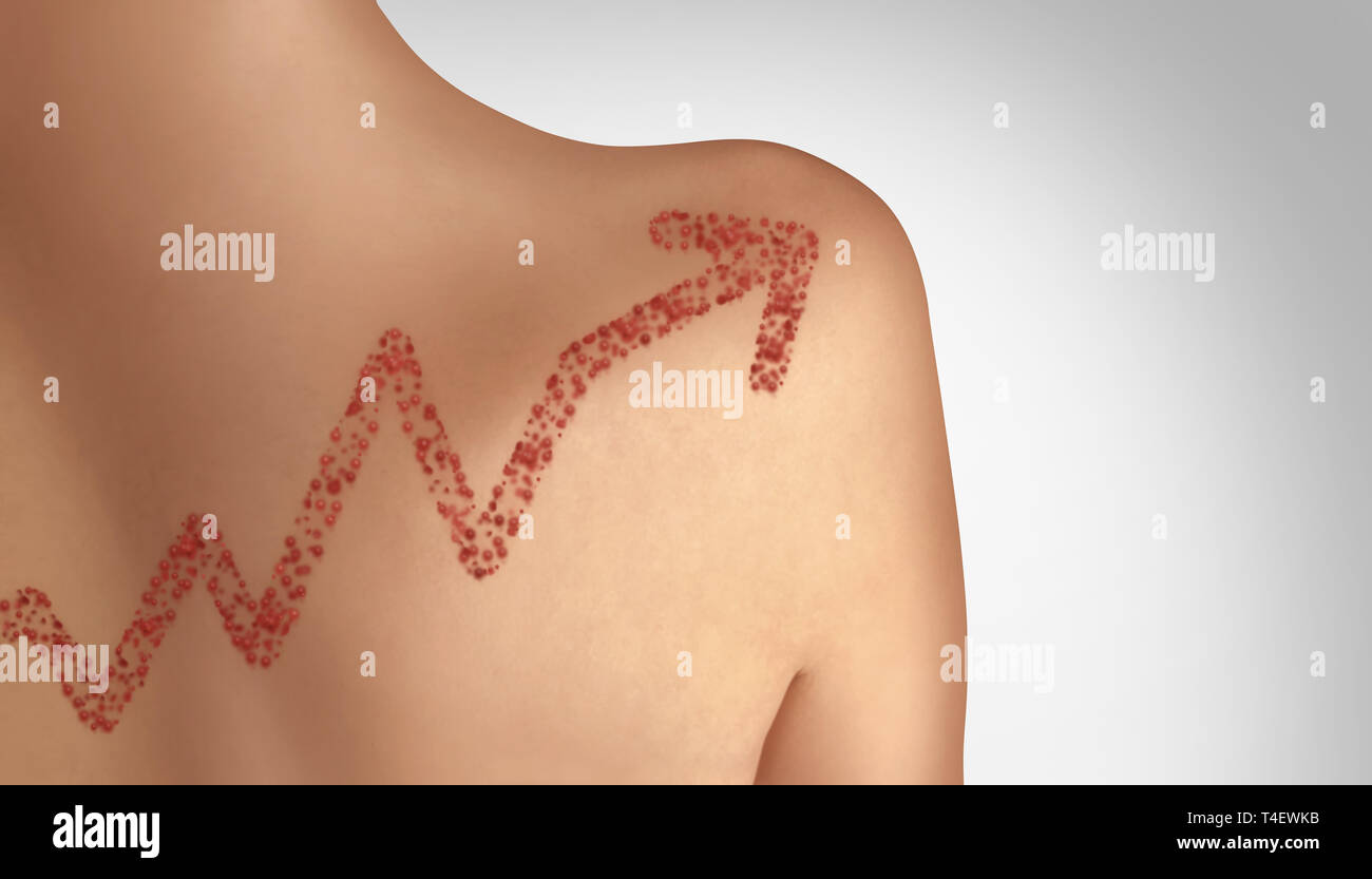 Increase in measles concept as a rising deadly outbreak disease and viral illness as a contagious chickenpox or a skin rash. - Stock Image