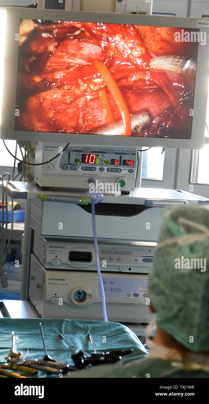 Leipzig, Deutschland. 20th Mar, 2019. 20.03.2019, Saxony, Leipzig: In the transplant center at the University Hospital, a surgical team from the Department of Urology takes a kidney from a healthy donor with the aid of the Da Vinci robot system for transplantation. In the Transpantation Center, which was founded in 1993, more than 1040 livers and over 1000 kidneys could be transplanted in the past 25 years. Credit: Waltraud Grubitzsch/dpa-Zentralbild/ZB | usage worldwide/dpa/Alamy Live News - Stock Image