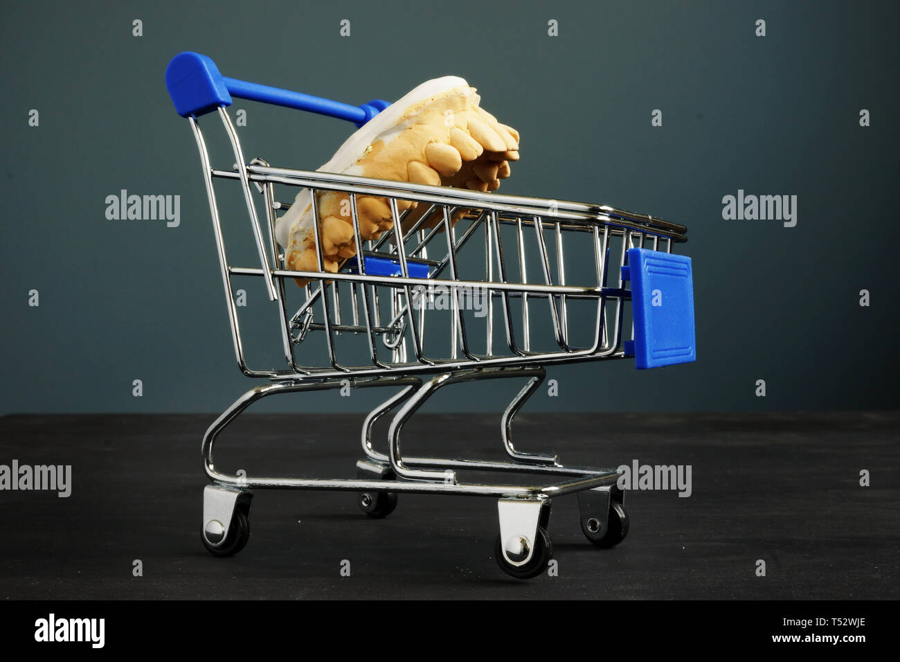 Dental plan and cost of treatment. Teeth cast model in a shopping cart. - Stock Image