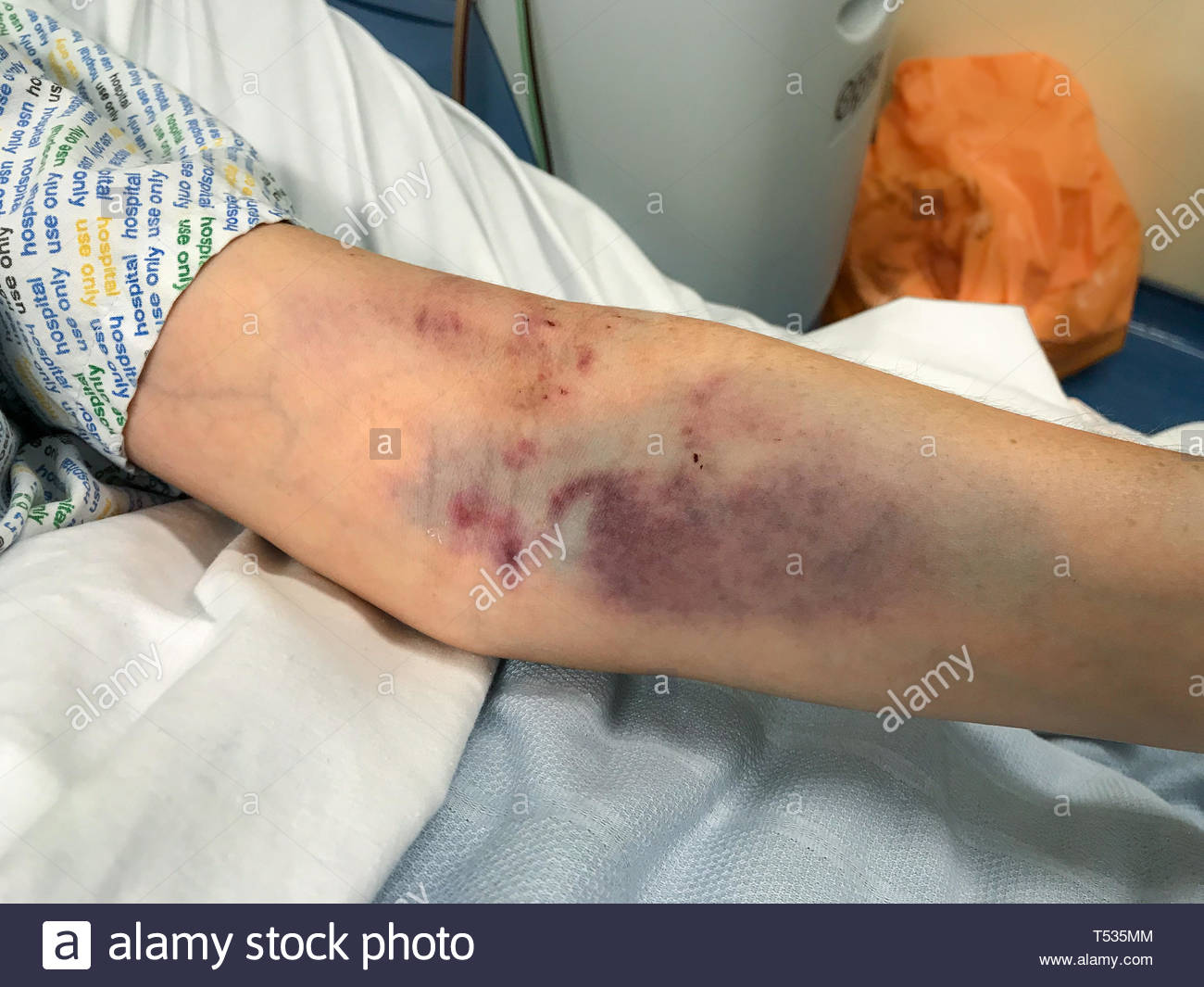 A close up of a woman's arm badly bruised from several attempts at drawing blood, the edge of the hospital gown can just be seen - Stock Image