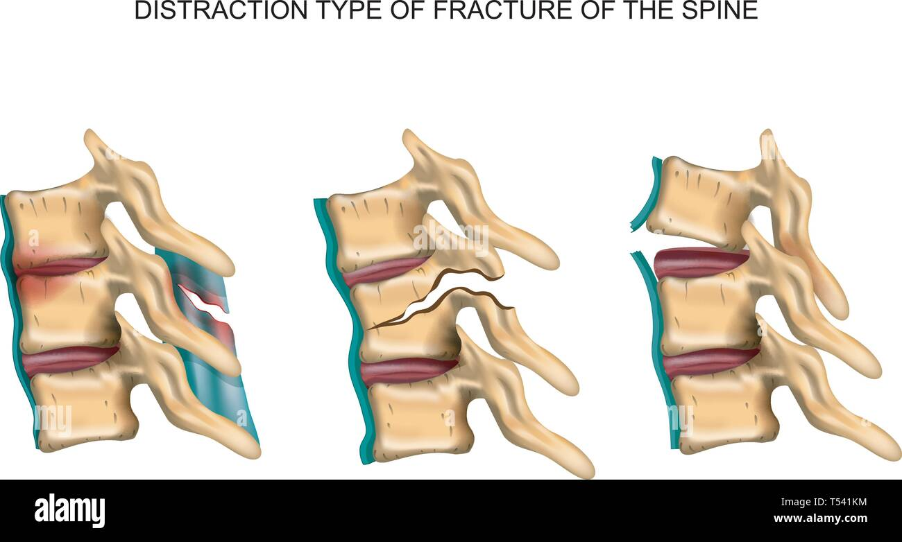 vector illustration of a distraction type of fracture of the spine - Stock Image