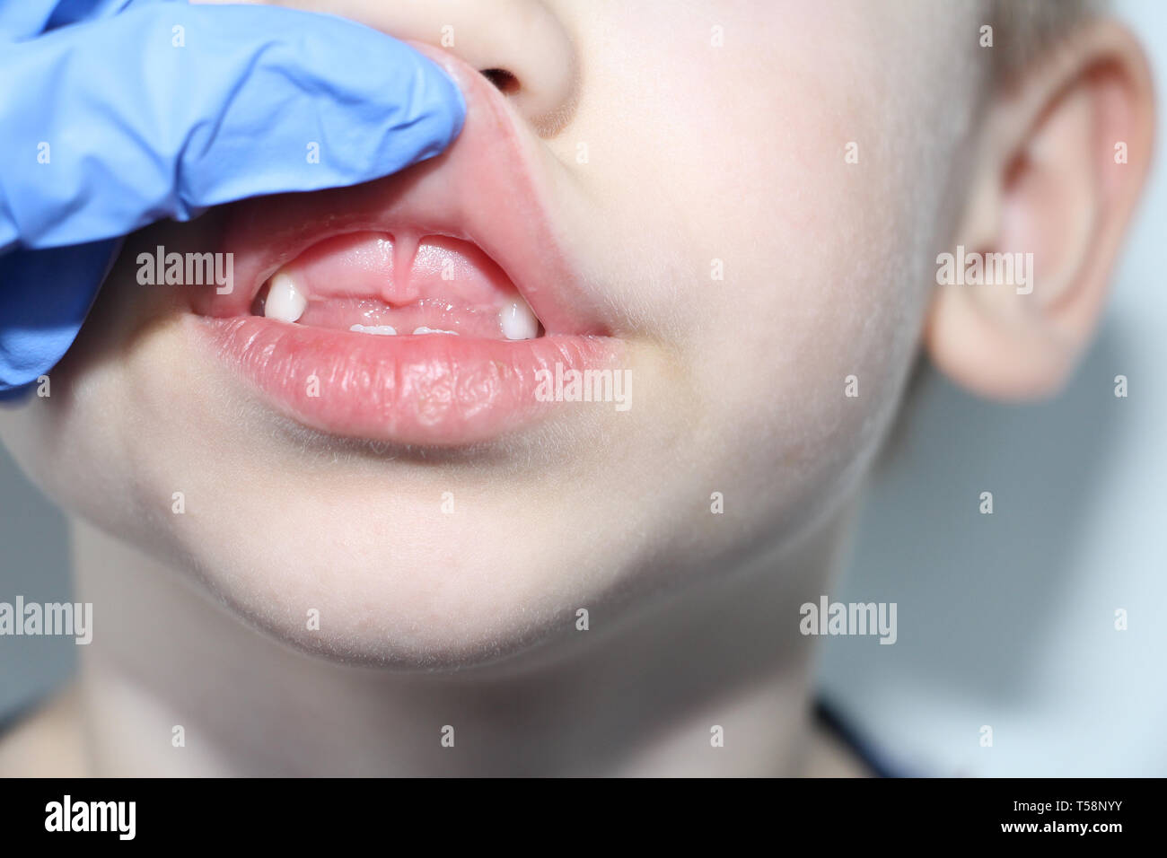 A dentist examines the baby teeth in the boy. The loss of milk teeth. The boy has no upper central teeth. The loss of milk teeth in children. Stock Photo