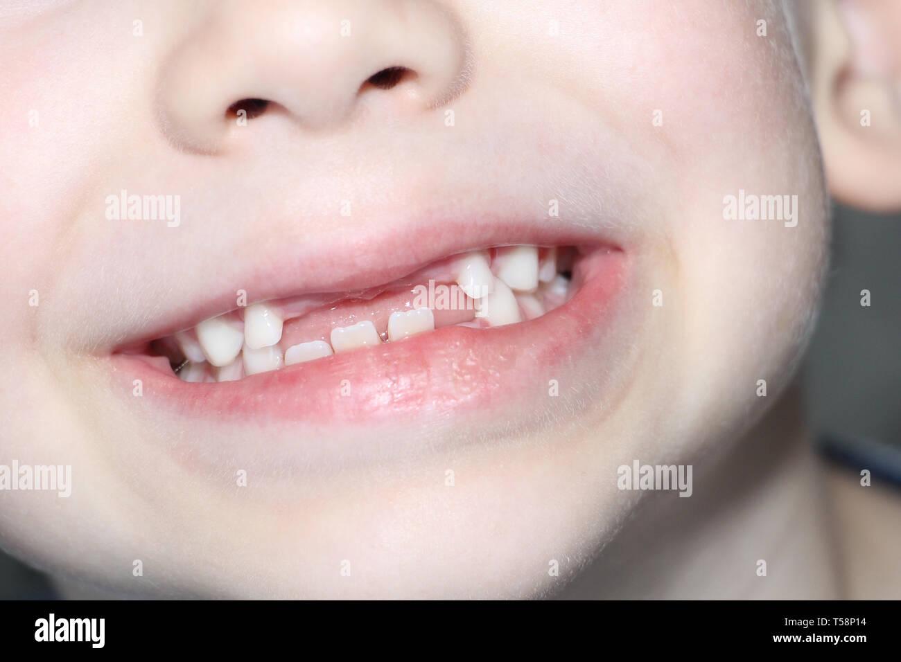 The boy smiles, his milk teeth are visible. Loss of milk teeth. The boy has no upper central teeth. The loss of milk teeth in children. - Stock Image