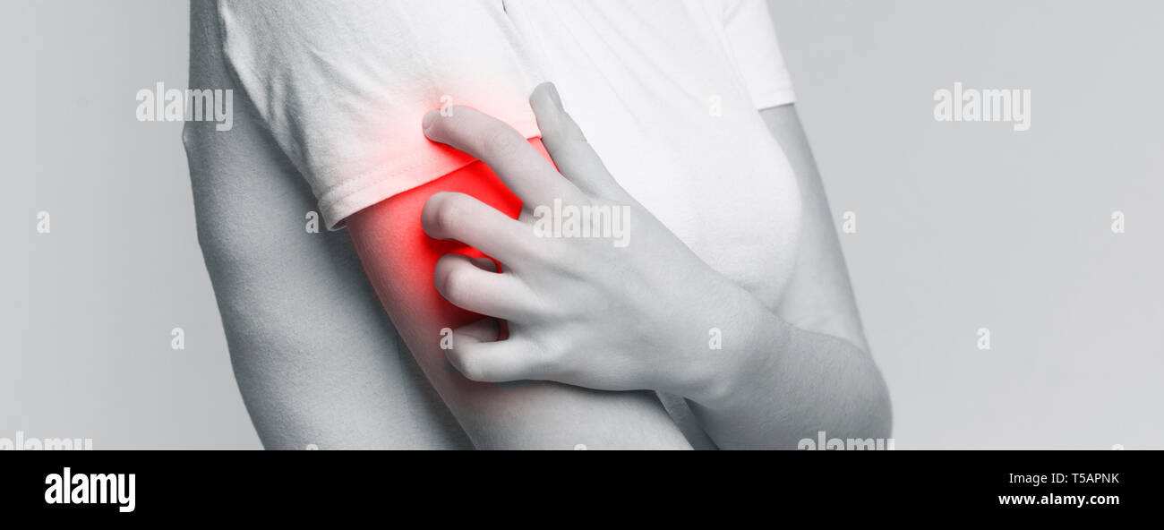 Woman scratching her shoulder with red rash - Stock Image