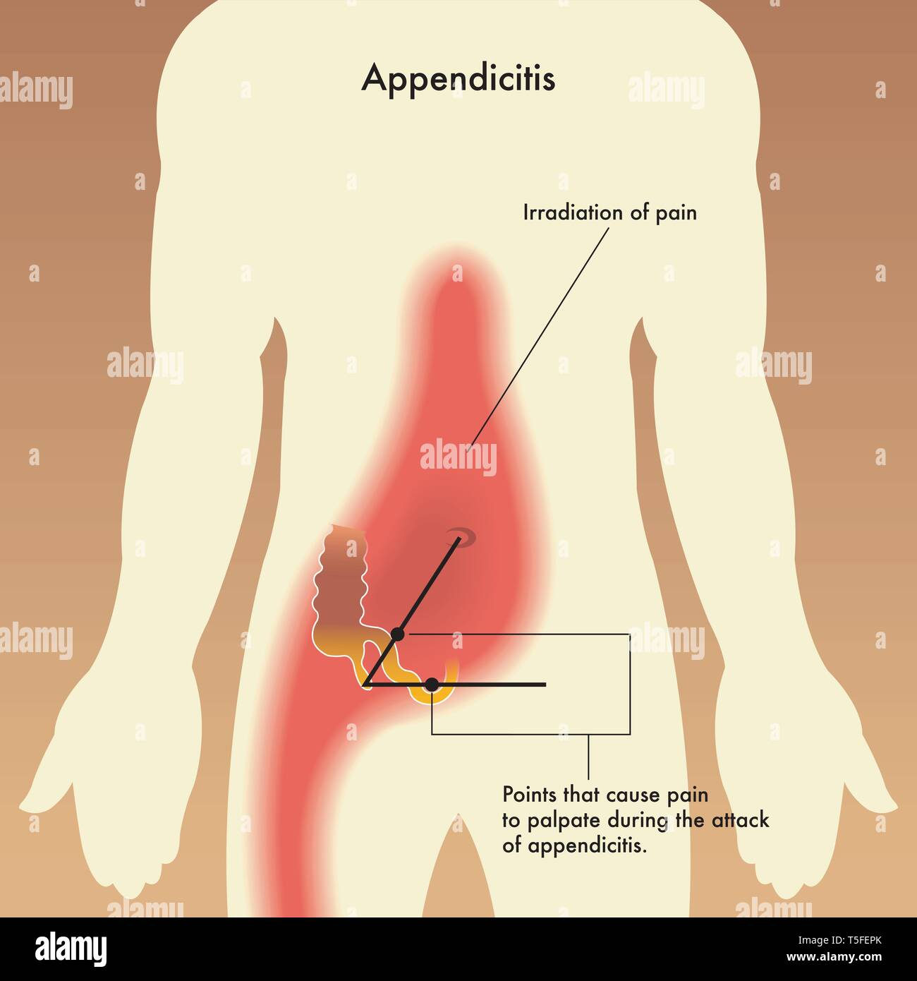 medical illustration showing the points that cause pain to palpate during the attack of appendicitis. - Stock Image