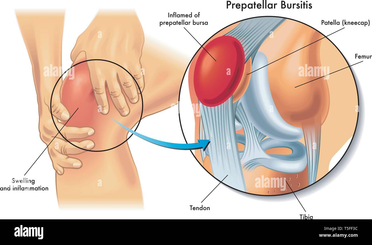Medical illustration showing anatomy of prepatellar bursitis condition of the human knee. Stock Vector