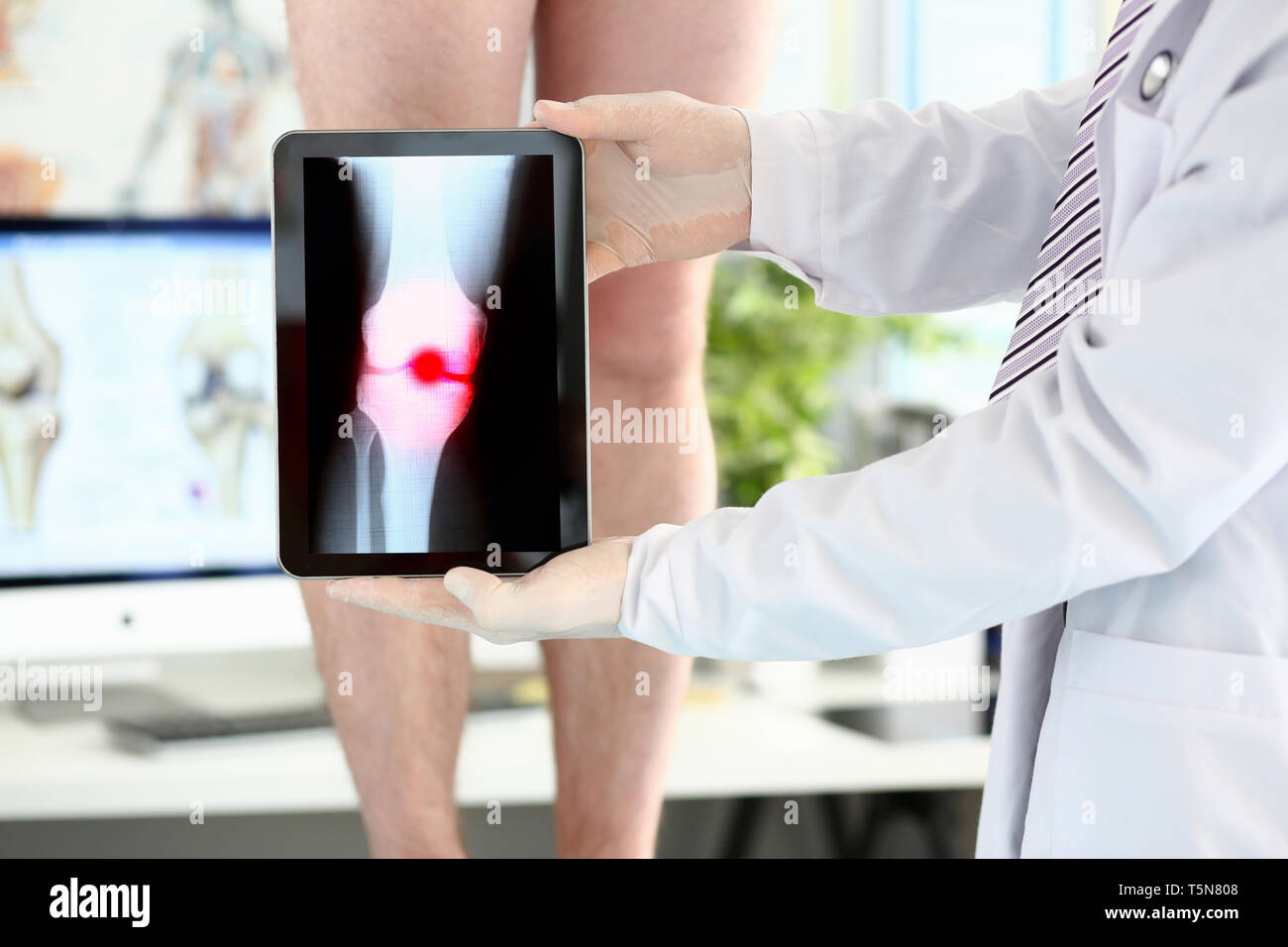 Male physician hands holding tablet computer showing xray shot with paintful area - Stock Image