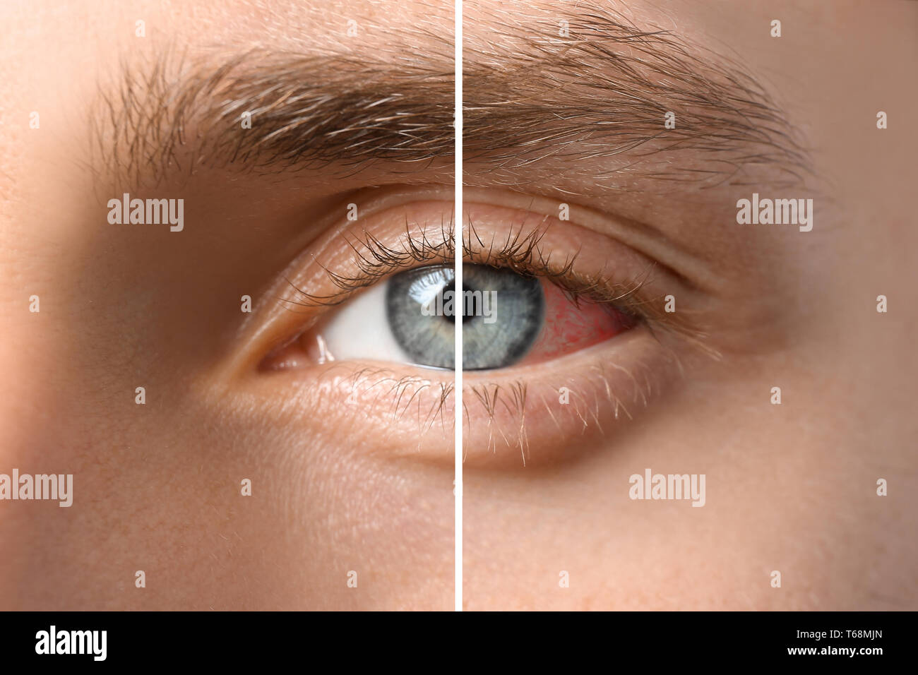 Young man without and with eye redness, closeup - Stock Image
