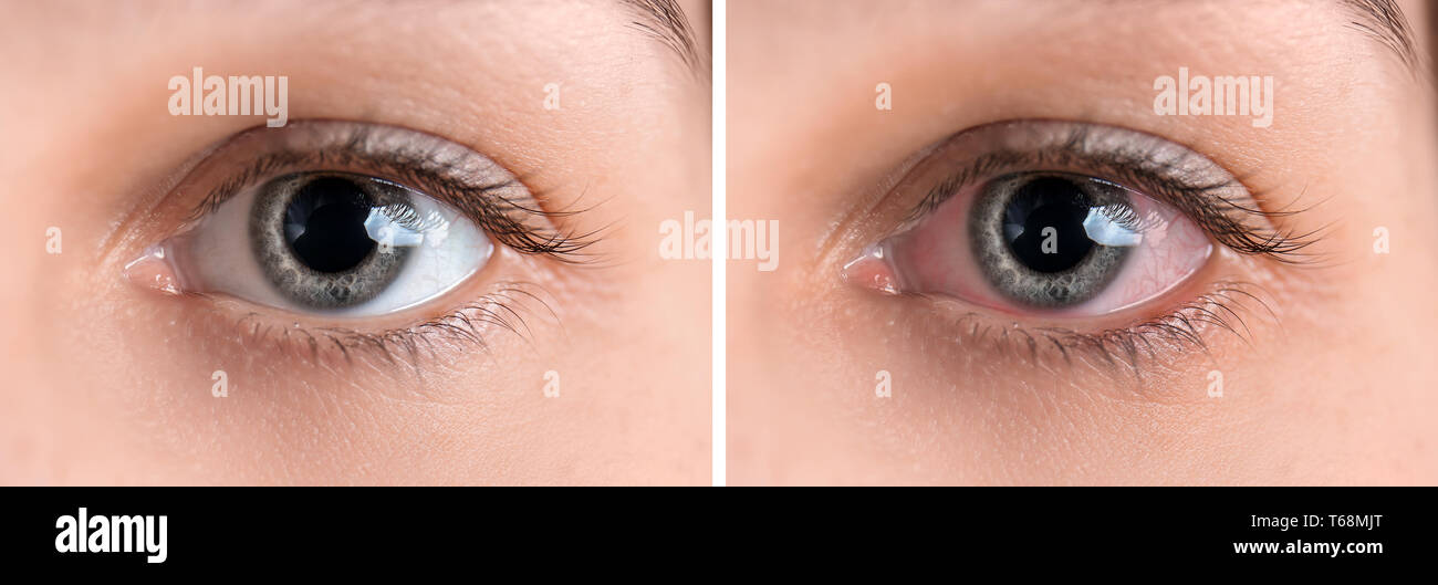 Young woman without and with eye redness, closeup - Stock Image
