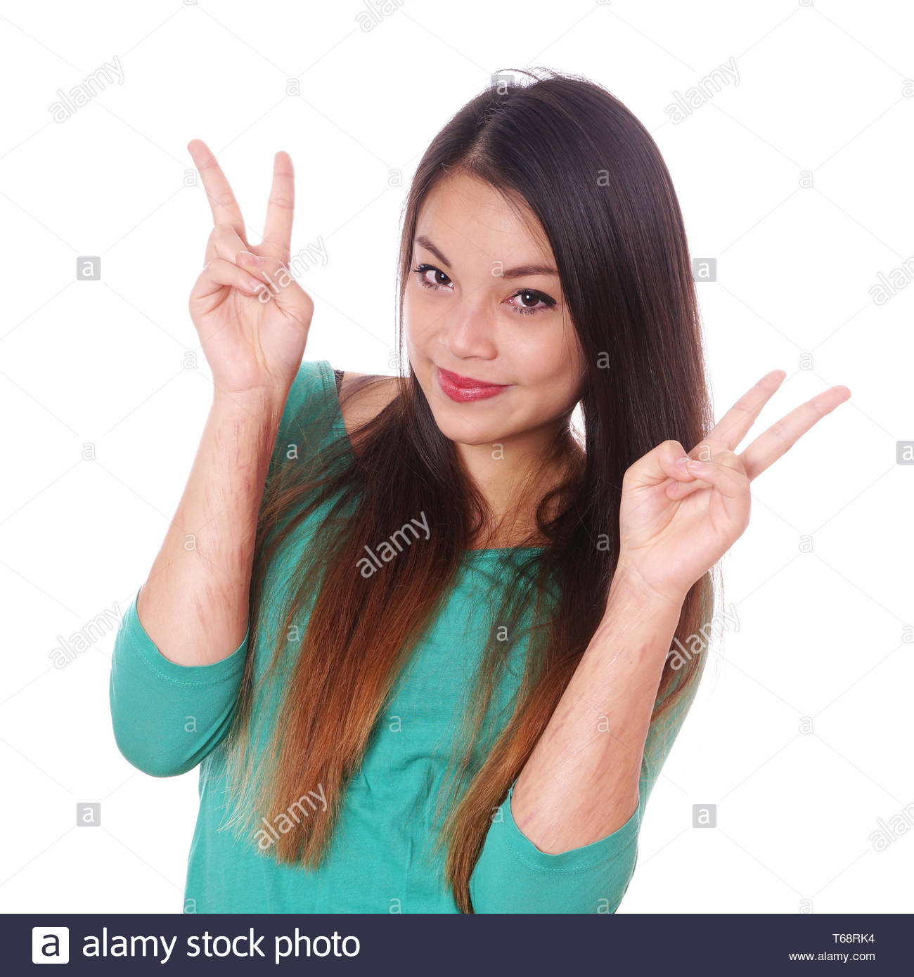 girl with scars from self-harm making victory sign - Stock Image