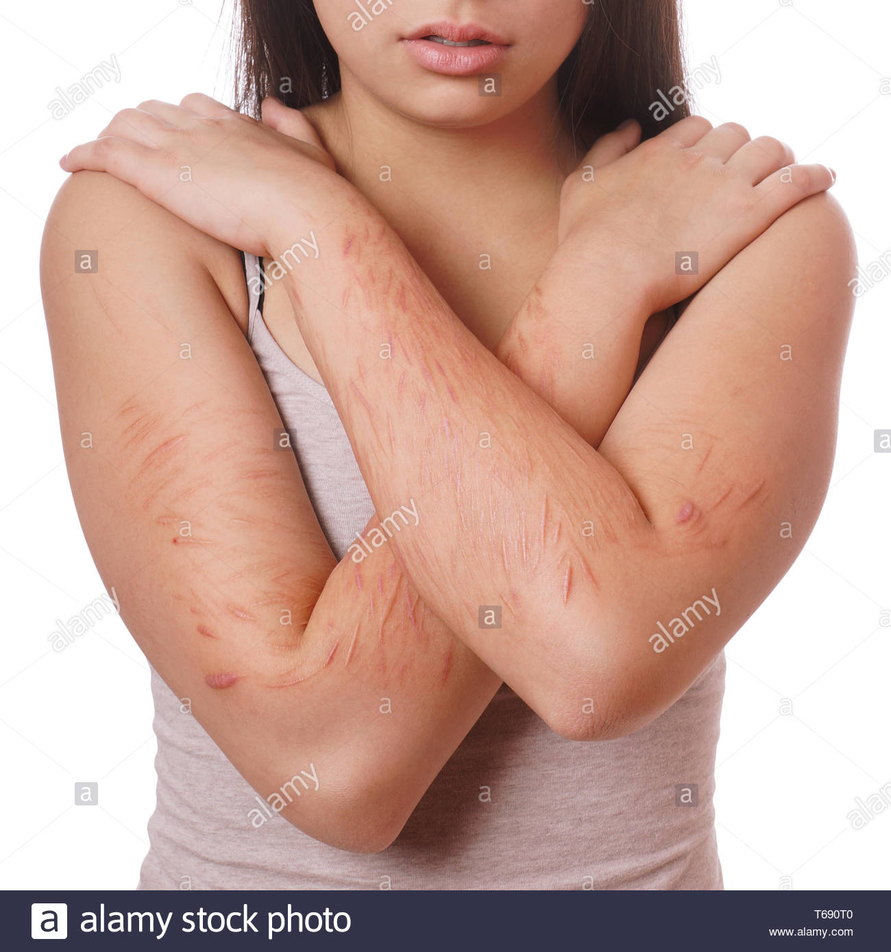 cuts and scars from self harm - Stock Image