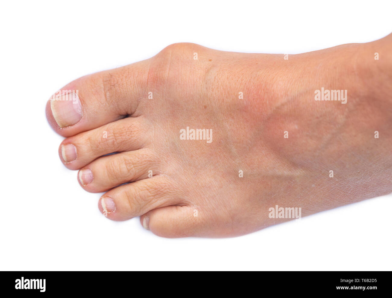 Foot of a woman with painful Hallux Valgus Stock Photo
