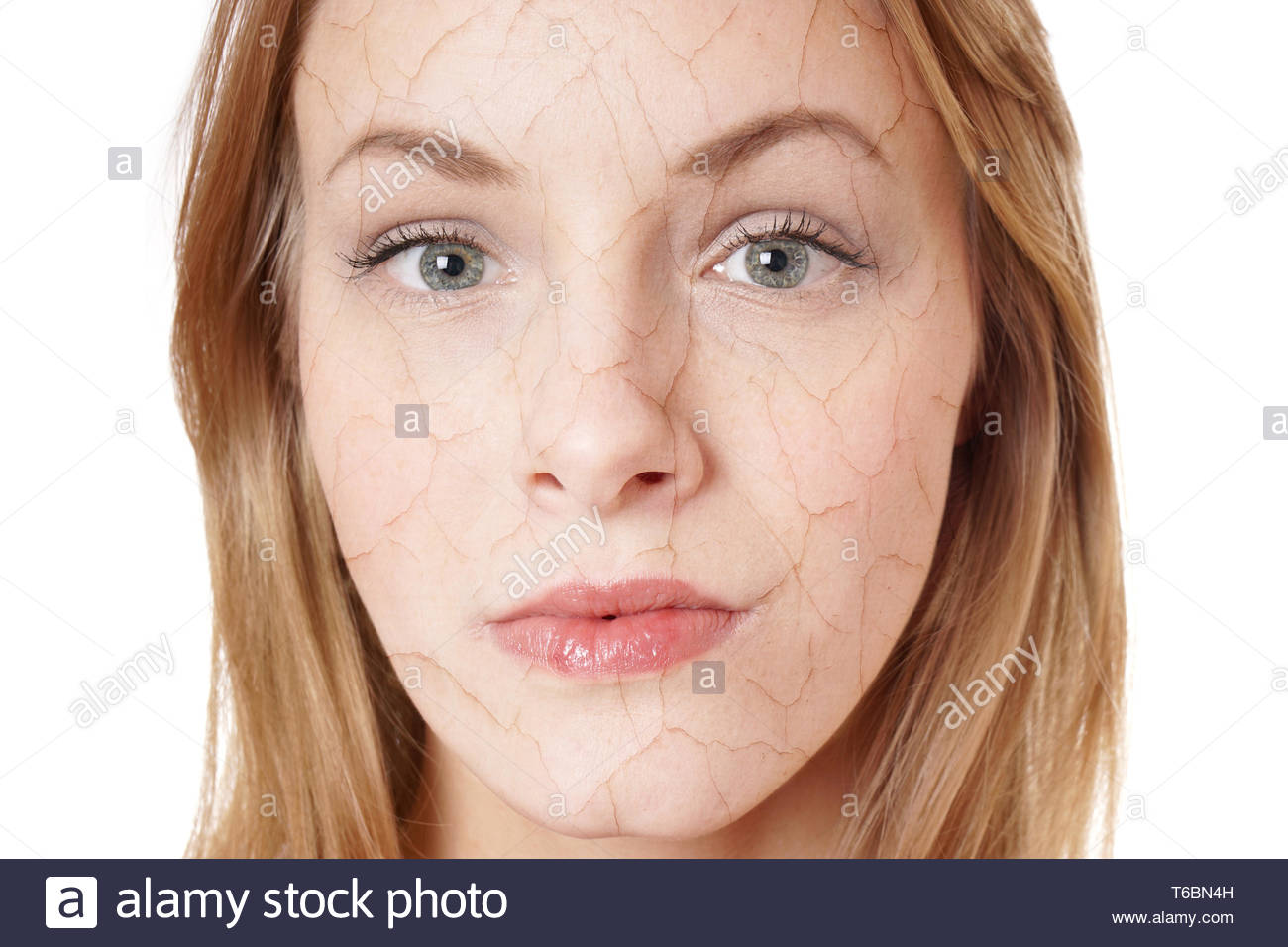 dry skin condition Stock Photo